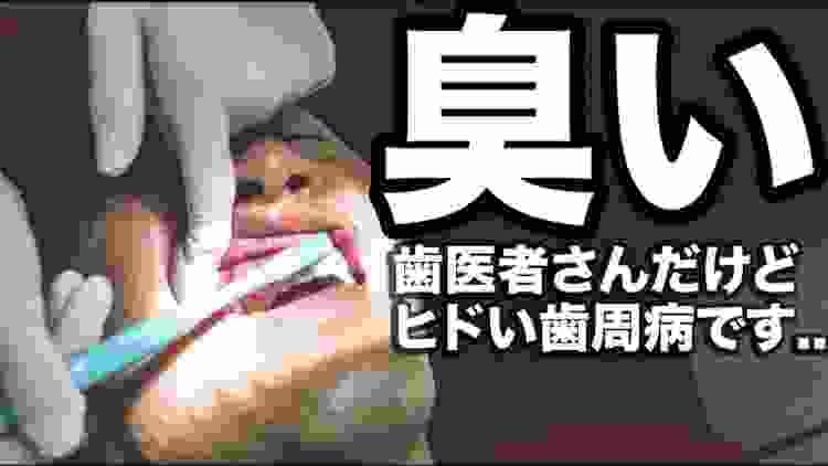 【歯周病に効く】口臭が気になる人へ魔法の歯磨き粉?歯周病のベテラン歯科医が実践!